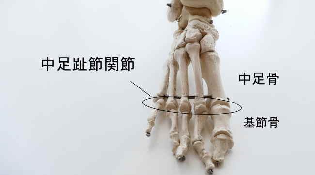 趾骨と中足骨の関節