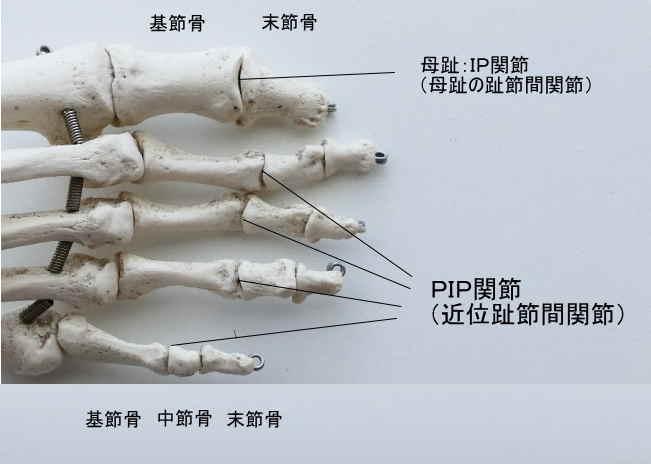 足のPIP関節