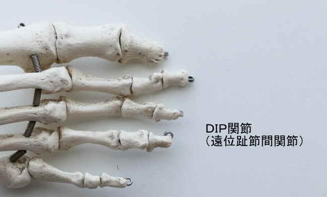 足のDIP関節