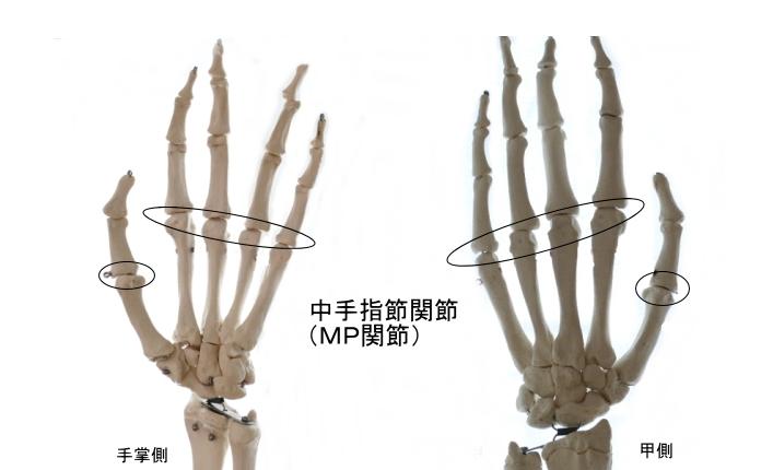 手のMP関節、中手指節関節
