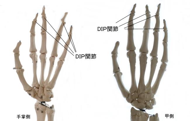手のDIP関節
