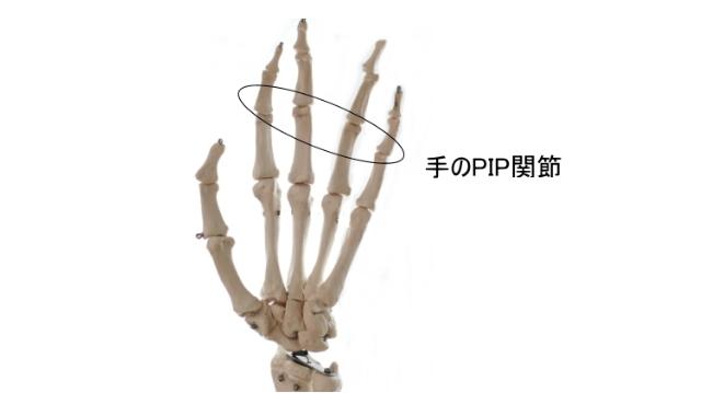 手のPIP関節