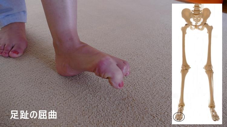 足趾の屈曲の動き