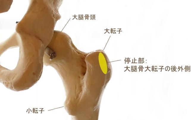 中臀筋の停止部