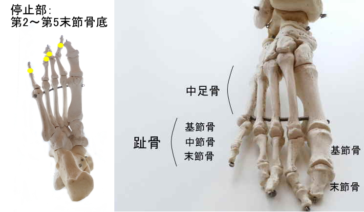長趾屈筋の停止部