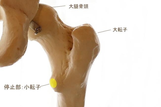 腸骨筋の停止部