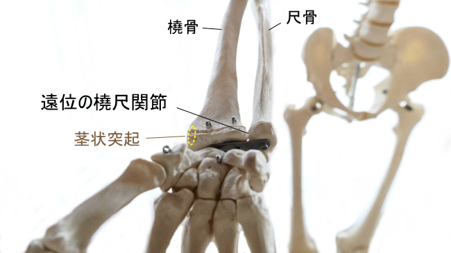 腕橈骨筋の停止部